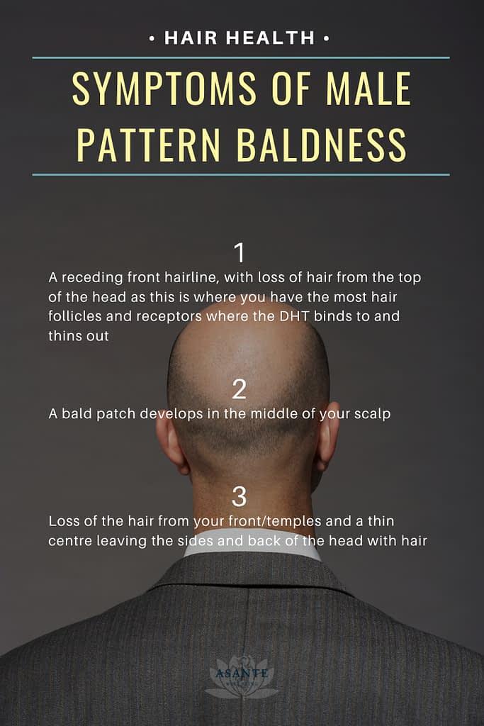 symptoms of male pattern baldness